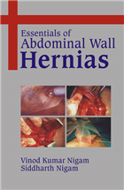 Essentials of Abdominal Wall Hernias  , 1/e  by V K Nigam